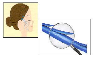 従来のコグ糸 リフトとの違い